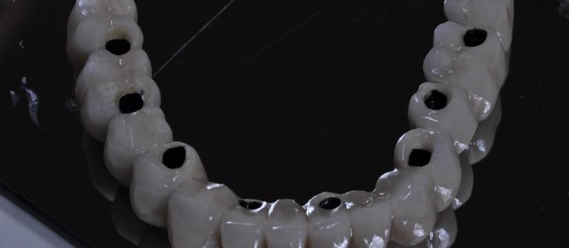 Los-implantes-dentales-1920