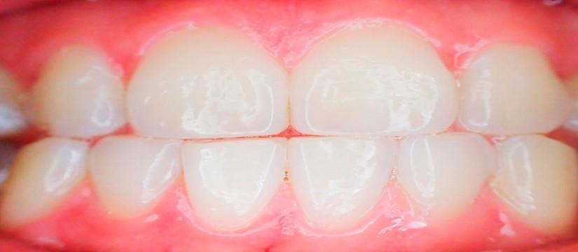 limpieza-dental-1920