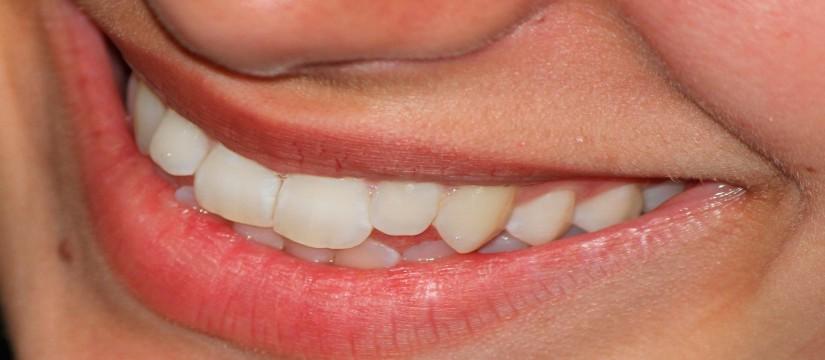 Efectos-que-provoca-la-boca-seca1920