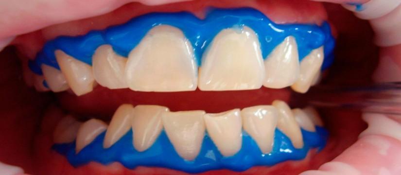 El-blanqueamiento-dental1920
