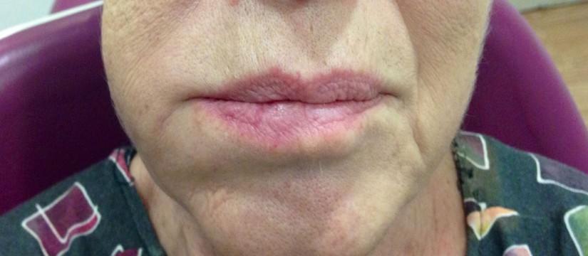 Resultado de imagen de flemon dental