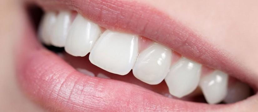 Las-fundas-dentales-1920l