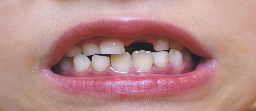 Es-necesario-empastar-dientes-y-muelas-de-leche-1920