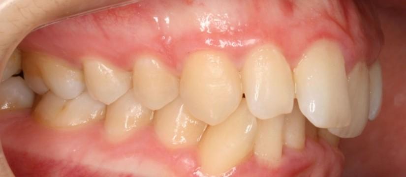 Es-verdad-que-las-muelas-del-juicio-mueven-los-dientes-1920