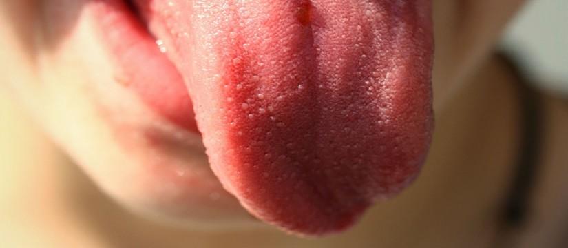 Glosodinia-o-síndrome-de-la-boca-ardiente-1920