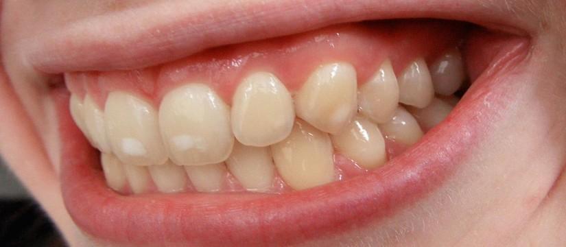 Las-manchas-blancas-en-los-dientes-1920