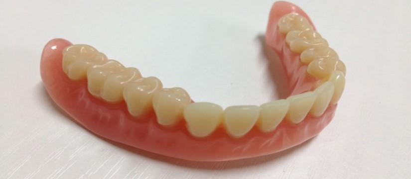 La-prostodoncia,-más-conocida-como-prótesis-dental-1920