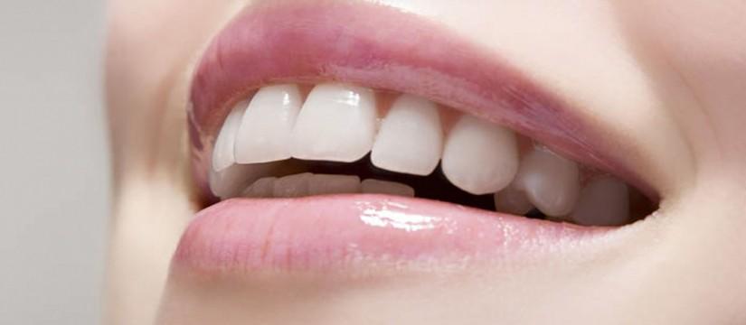 La-tendencia-del-mock-up-o-maquillaje-dental-1920-