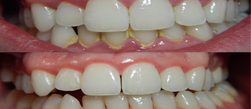Cómo-prevenir-la-gingivitis-1920