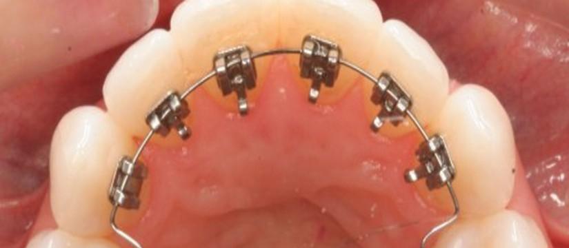 La-ortodoncia-lingual-1920